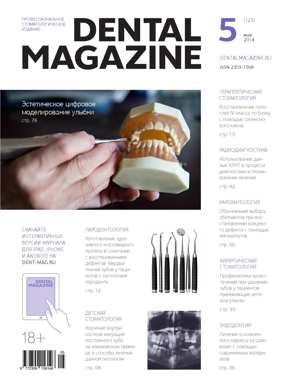 инструкция введение зубного имплантанта