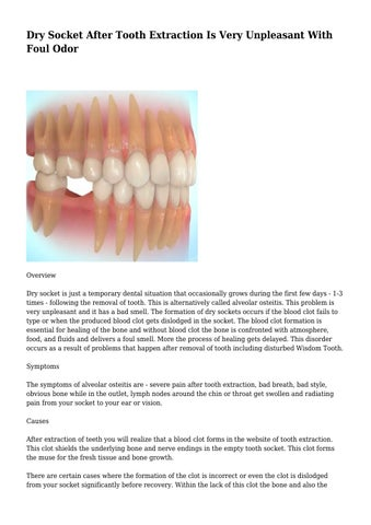Dry Socket After Tooth Extraction Is Very Unpleasant With Foul Odor