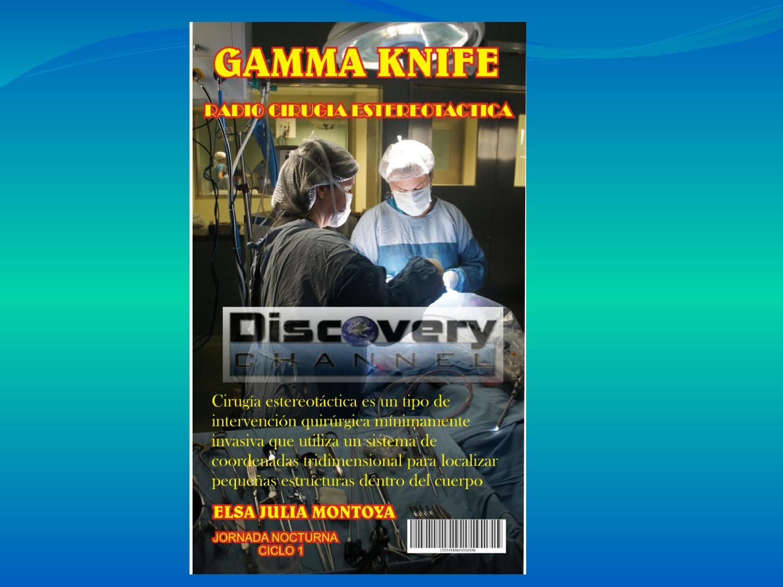 Revista avance tecnologico gamma knife completa by Elsa Julia ...