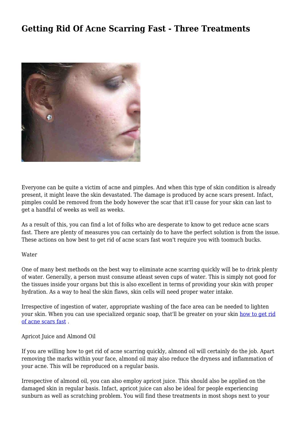 Getting Rid Of Acne Scarring Fast - Three Treatments by