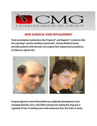 Dr Glenn M Charles Do Best Non Surgical Hair Transplants Surgeon By Dr Glenn M Charles Do Issuu