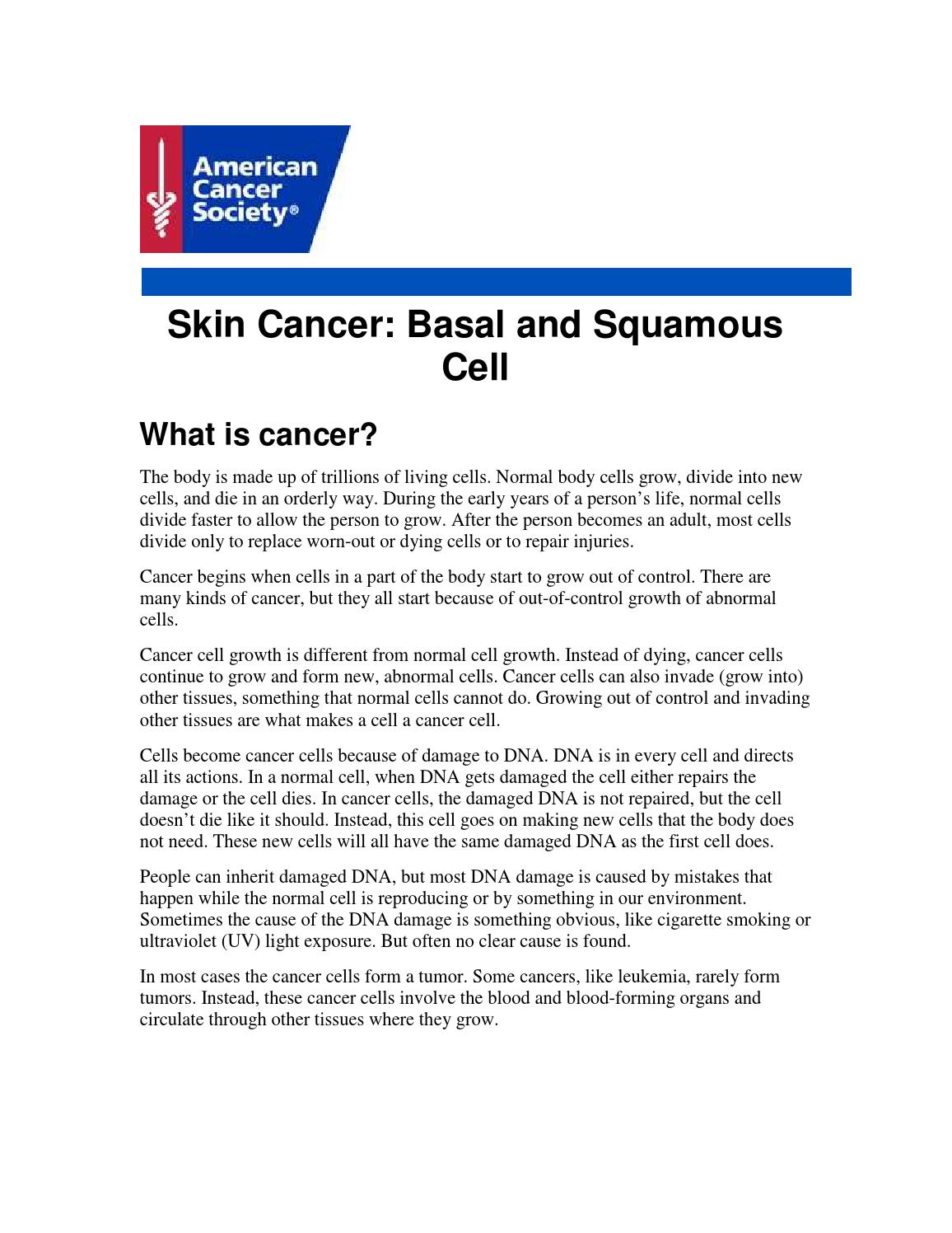 skin cancer basal and squamous by vikrant issuu