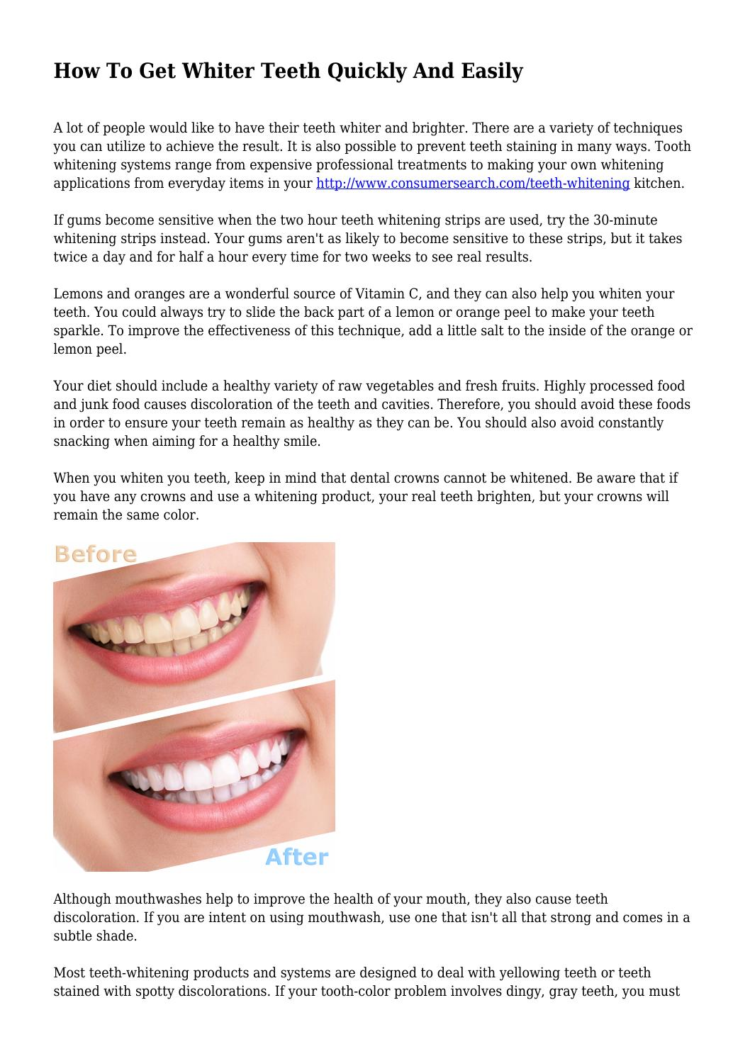 How To Get Whiter Teeth Quickly And Easily By Steadfastbough341