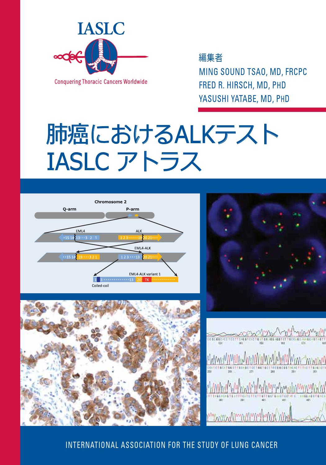 Iaslc atlas of alk testing in lung cancer japanese by for Fish test for cancer