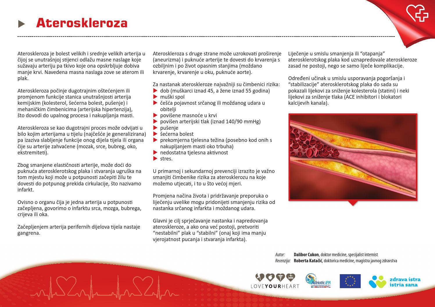 Plyšus aortai, retas kuris išgyvena: norint sumažinti riziką, veiksmų imtis galima nedelsiant