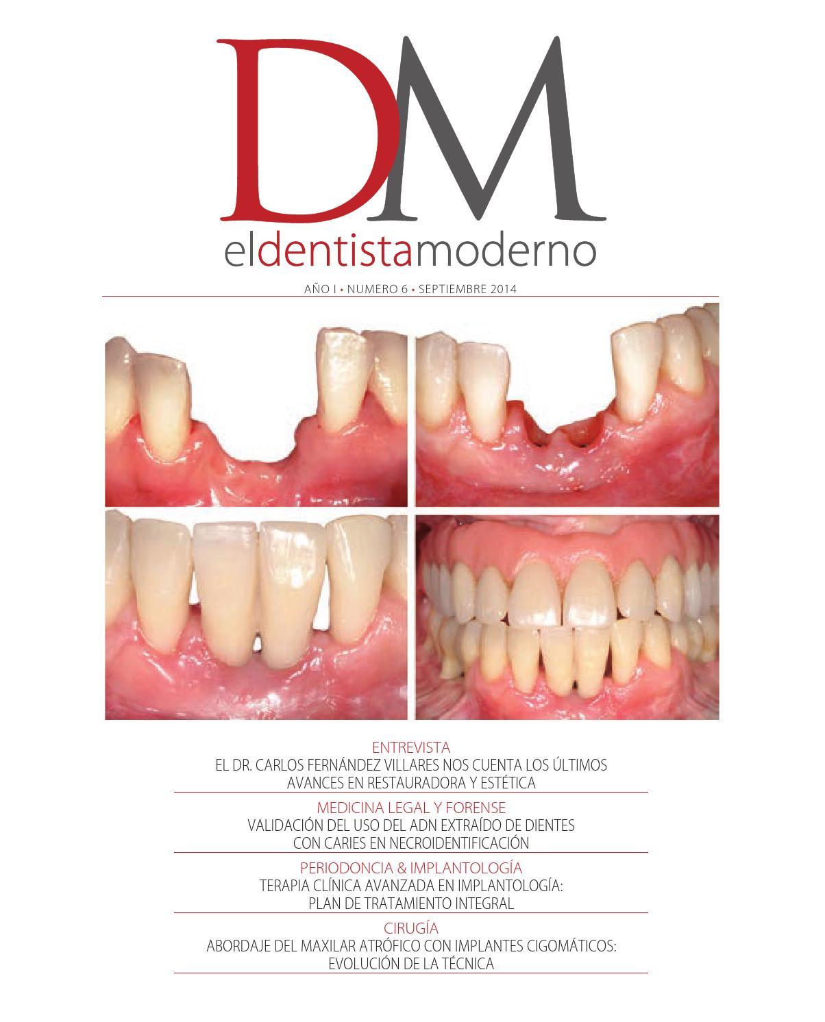 El Dentista Moderno nº 6 by Digital Newspapers S.L. - issuu