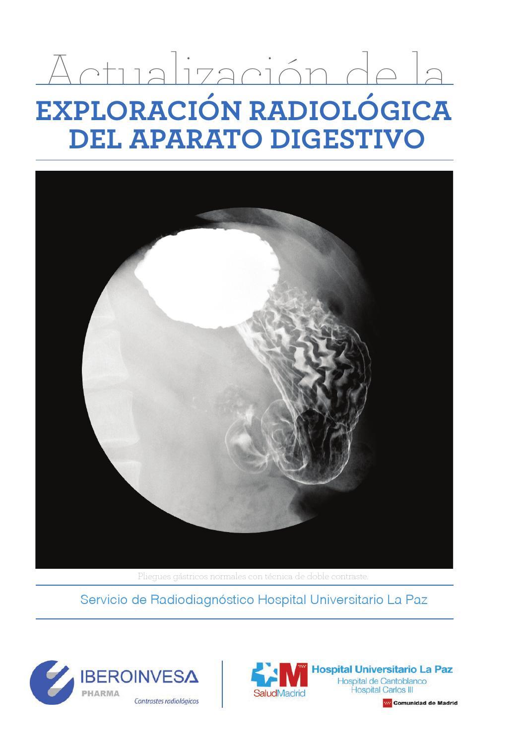 Ebook exploracion radiologica del aparato digestivo by iberoinvesa ...