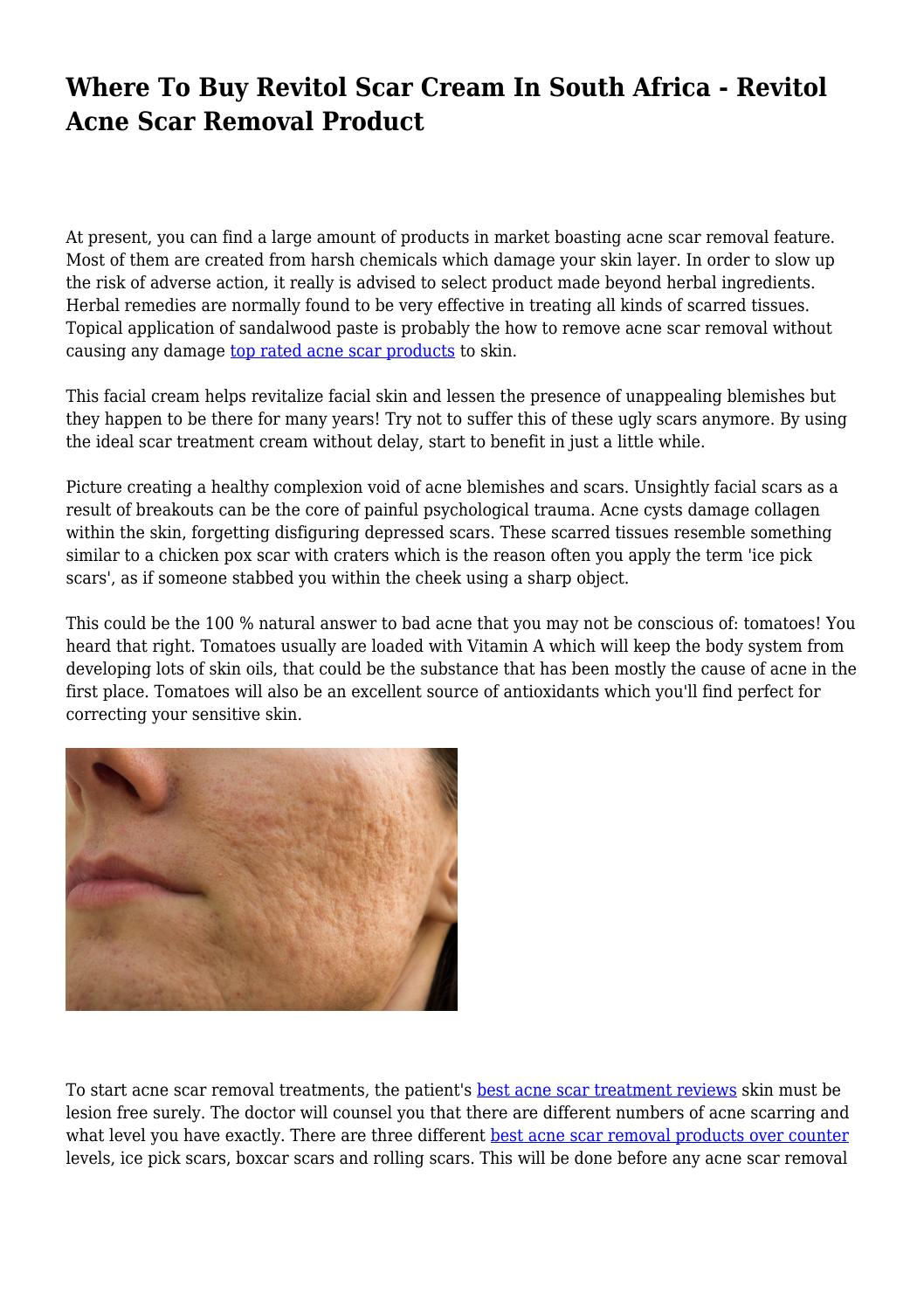Where To Buy Revitol Scar Cream In South Africa Revitol Acne Scar