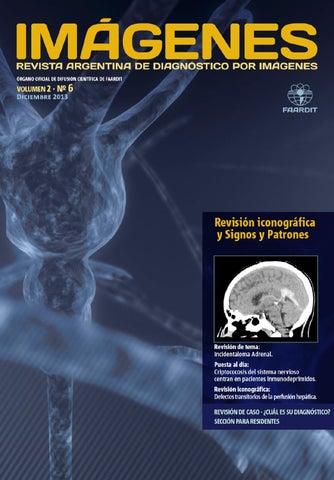 abdominal cancer vancer apendicular diagnostico y tratamiento tratamentul eficient al viermilor