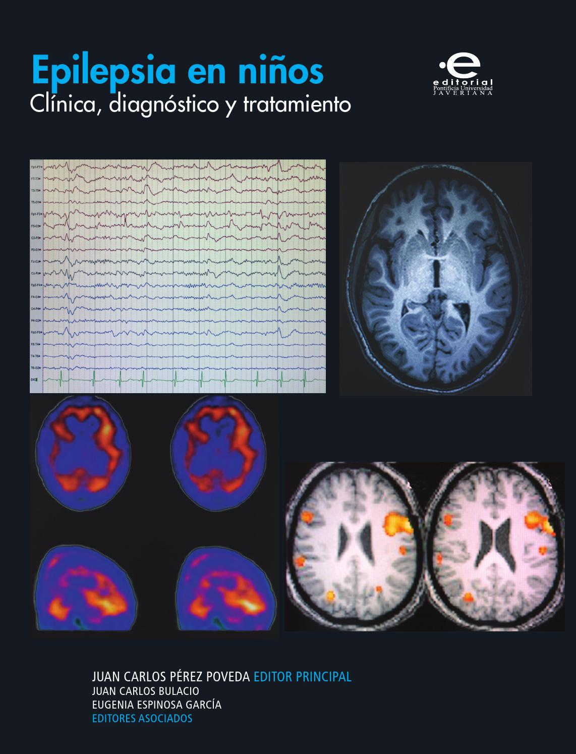 Epilepsia en niños by Editorial Pontificia Universidad Javeriana - issuu