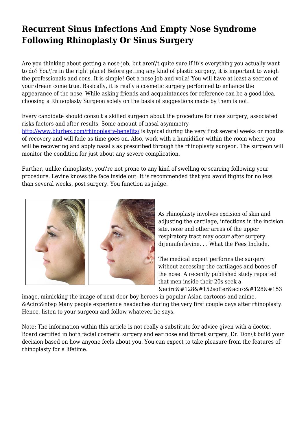 Recurrent Sinus Infections And Empty Nose Syndrome Following