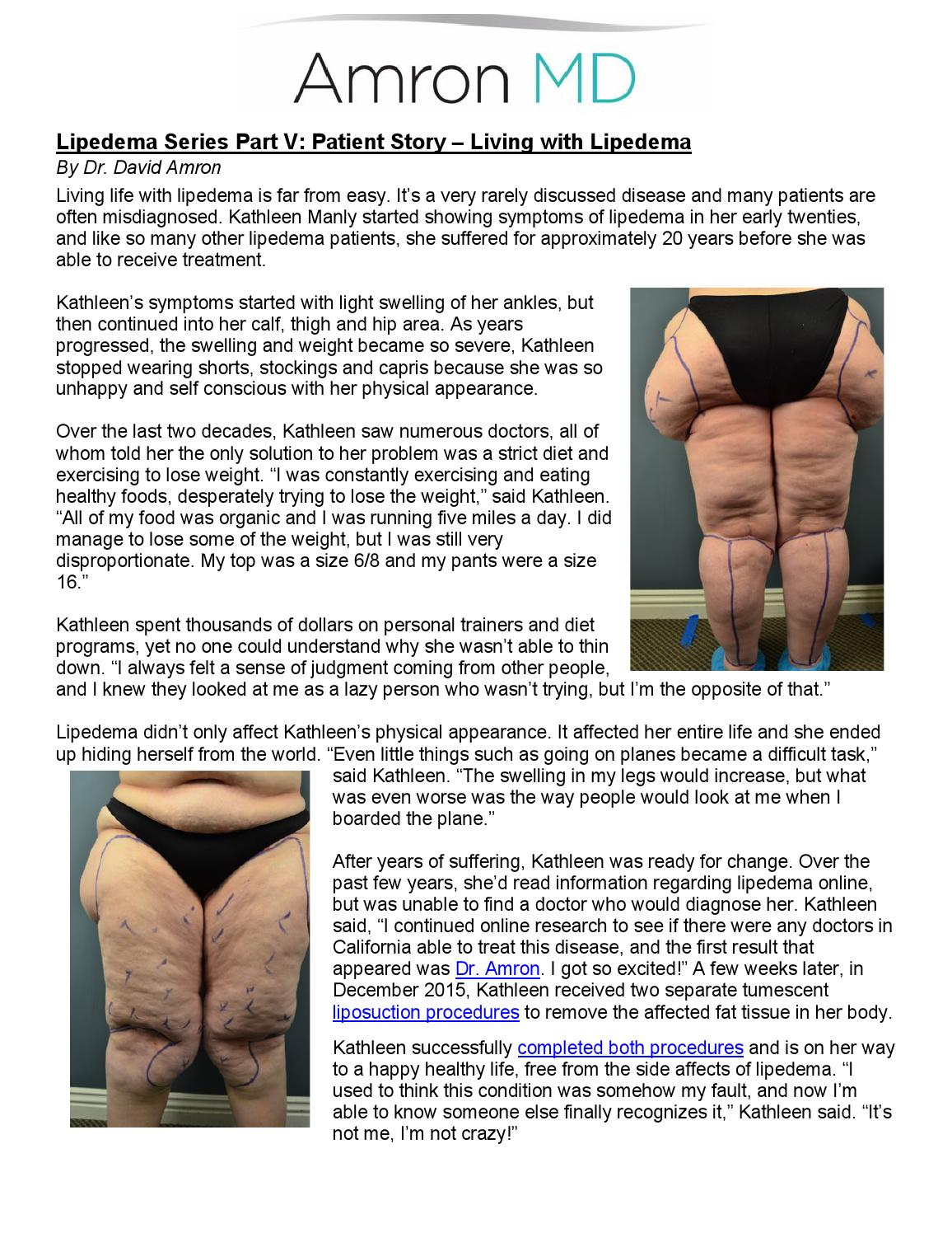 Lipedema Series Part V: Patient Story - Living with Lipedema by Dr