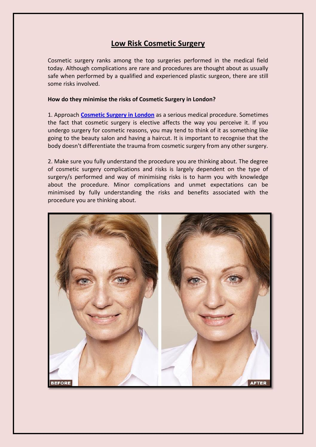 Plastic Surgeon with Experience and Compassion