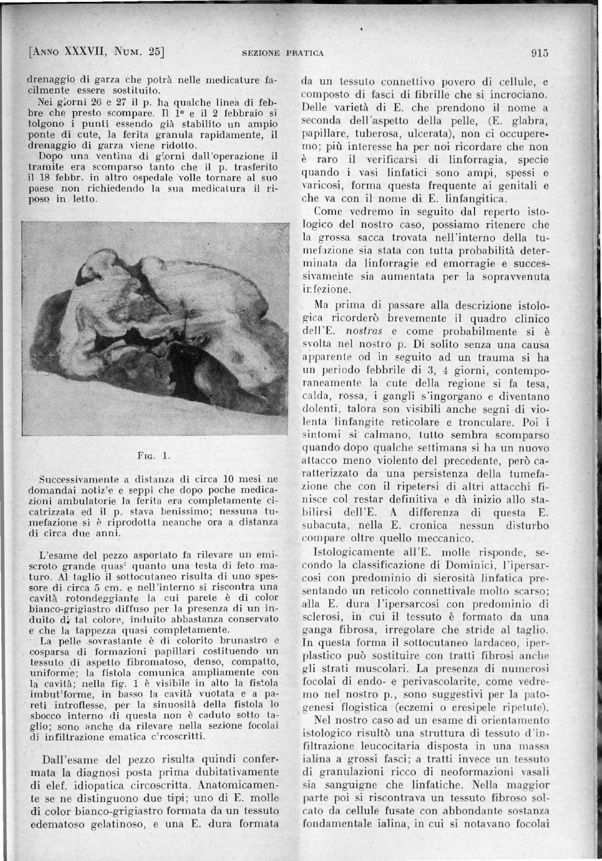 erezione durante massaggio donna douglas
