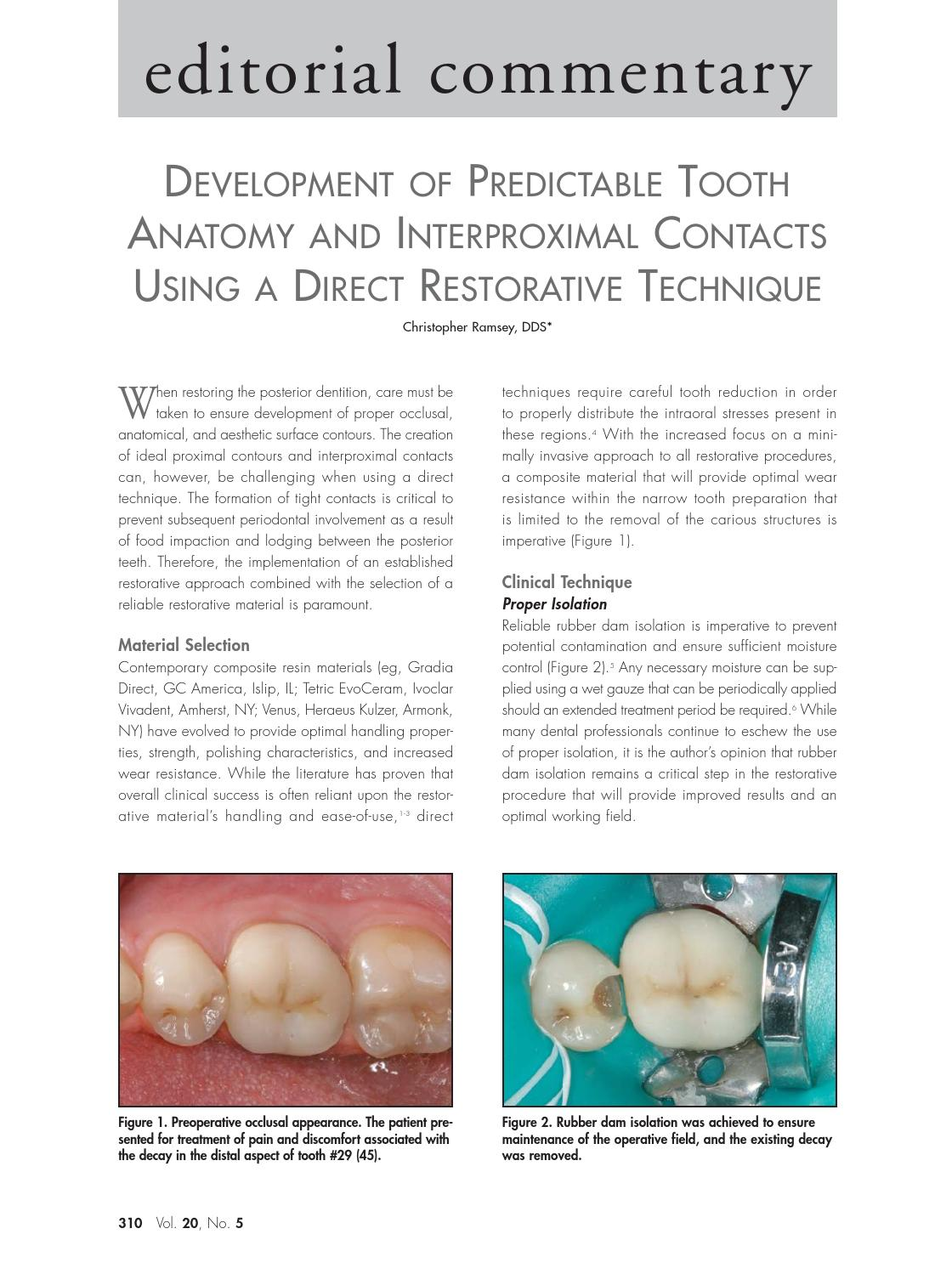 Predictable Contacts in Composite by Christopher Ramsey, DMD - issuu