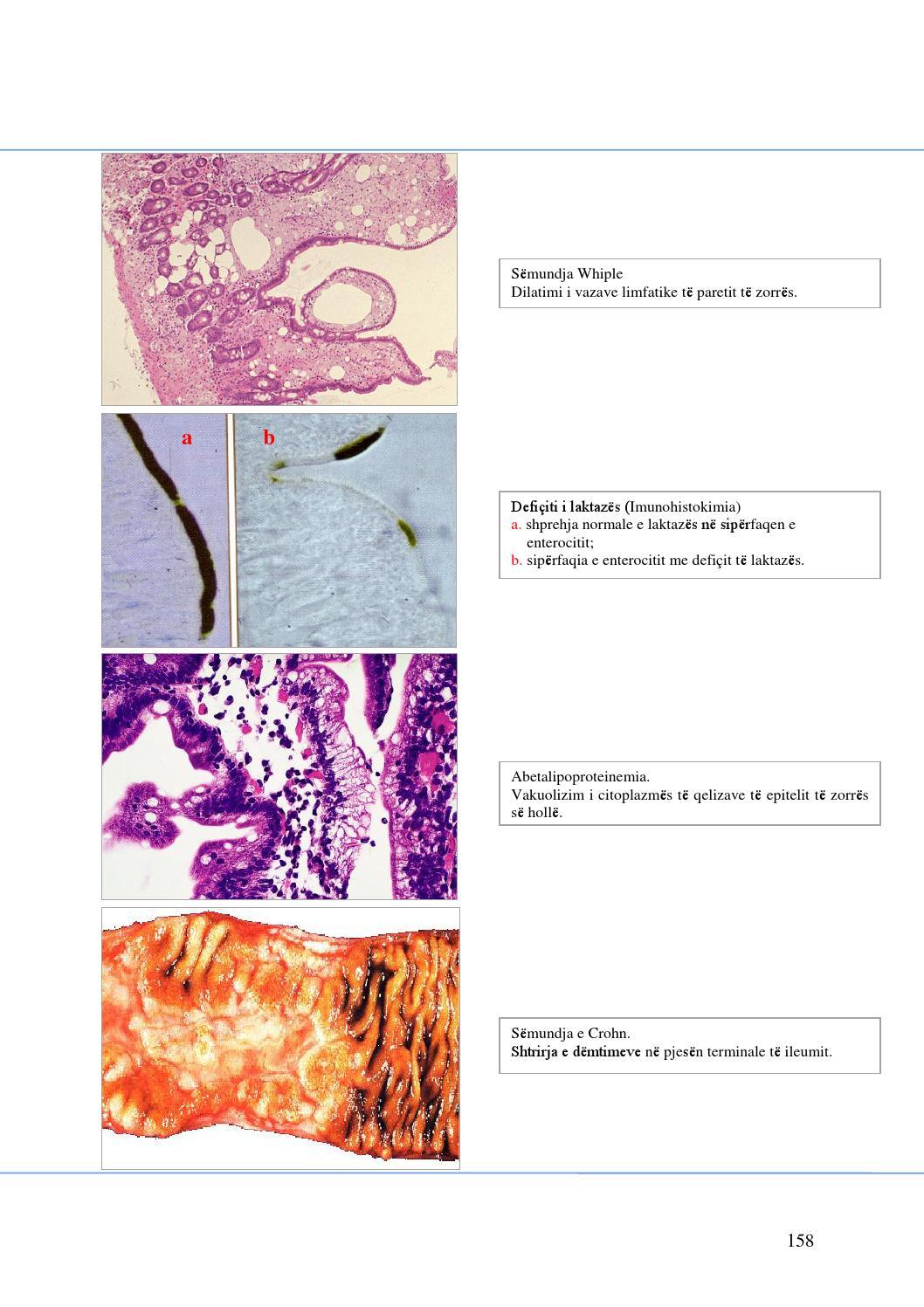 a mikoplazma kötelezővé teszi az intracelluláris parazitákat)