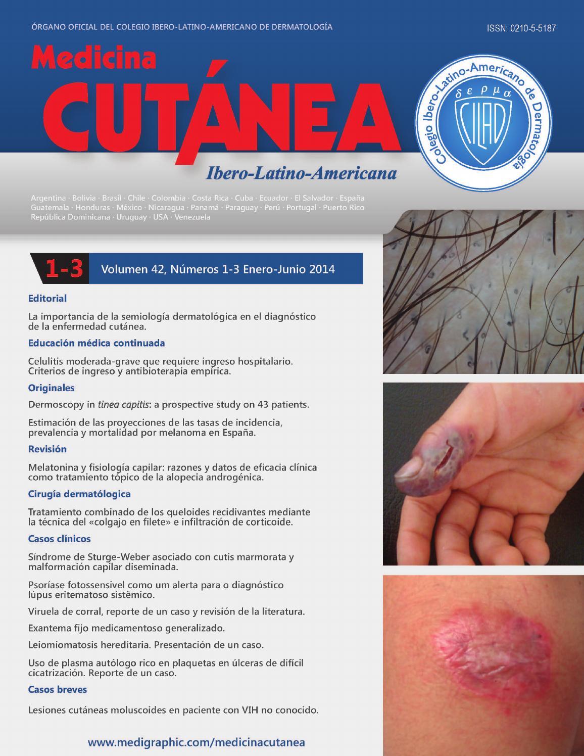 celulitis del carbunco