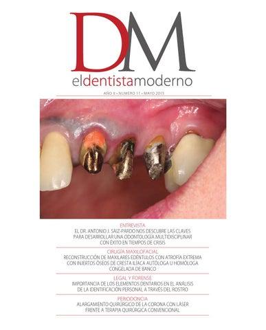 El Dentista Moderno - nº 11 by Versys Ediciones Técnicas fb665d485867