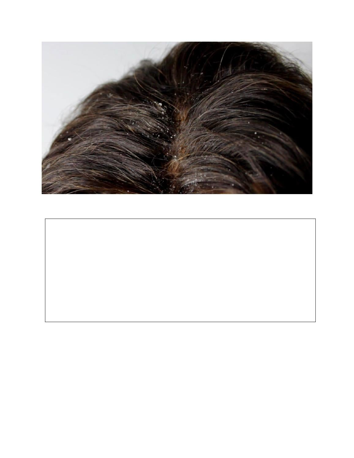 How To Get Rid Of Dandruff And Dry Scalp Naturally
