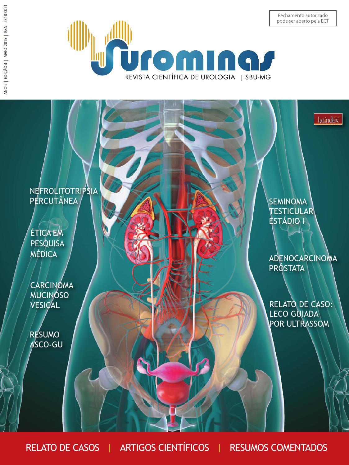 adenocarcinoma acinar usual da próstata de gleason 7 (3+4)