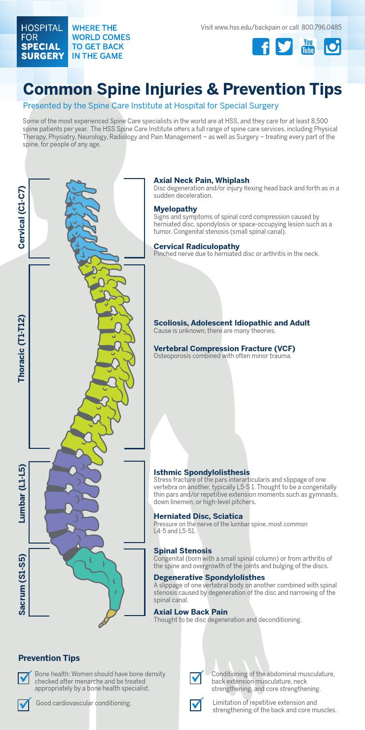 Hss Common Spine Injuries Amp Prevention Tips Infographic