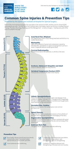 HSS - Common Spine Injuries & Prevention Tips Infographic by