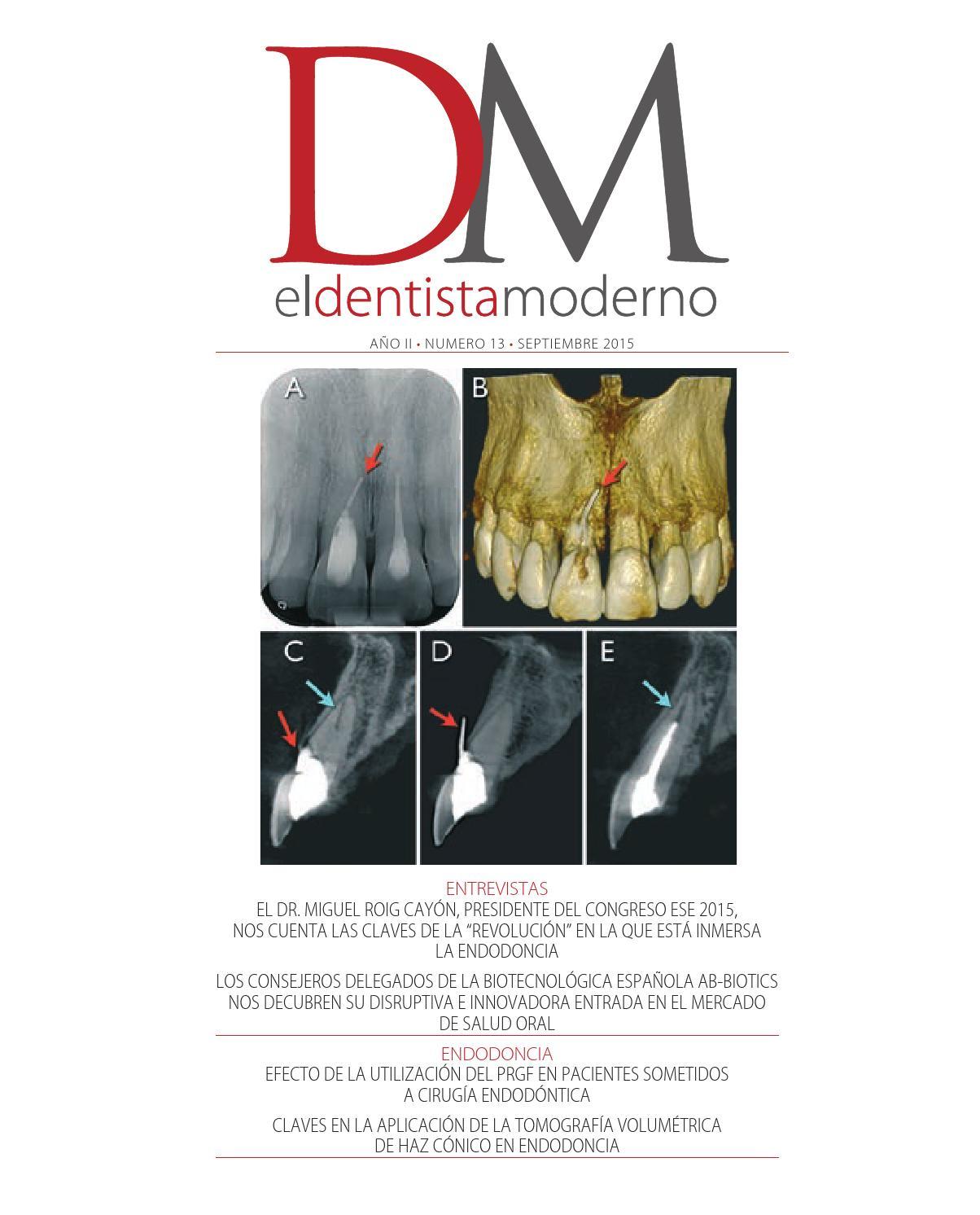 El Dentista Moderno - nº 13 by Digital Newspapers S.L. - issuu