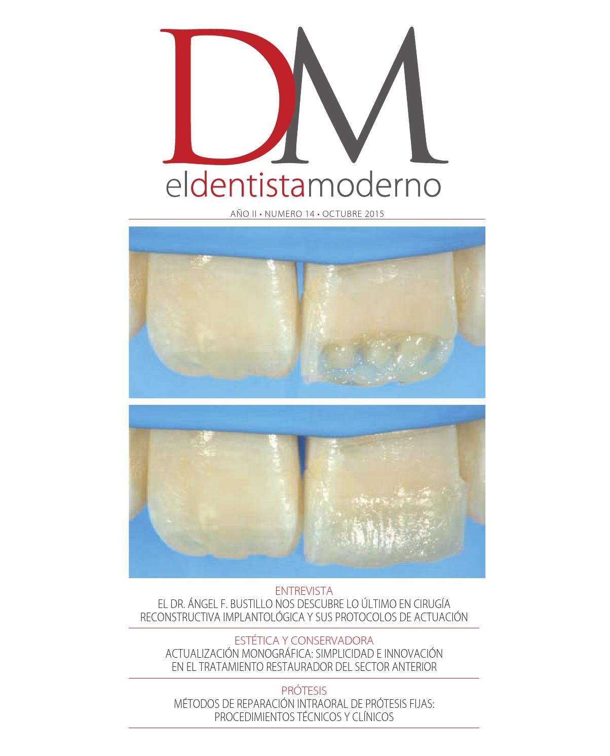 El Dentista Moderno - nº 14 by Digital Newspapers S.L. - issuu