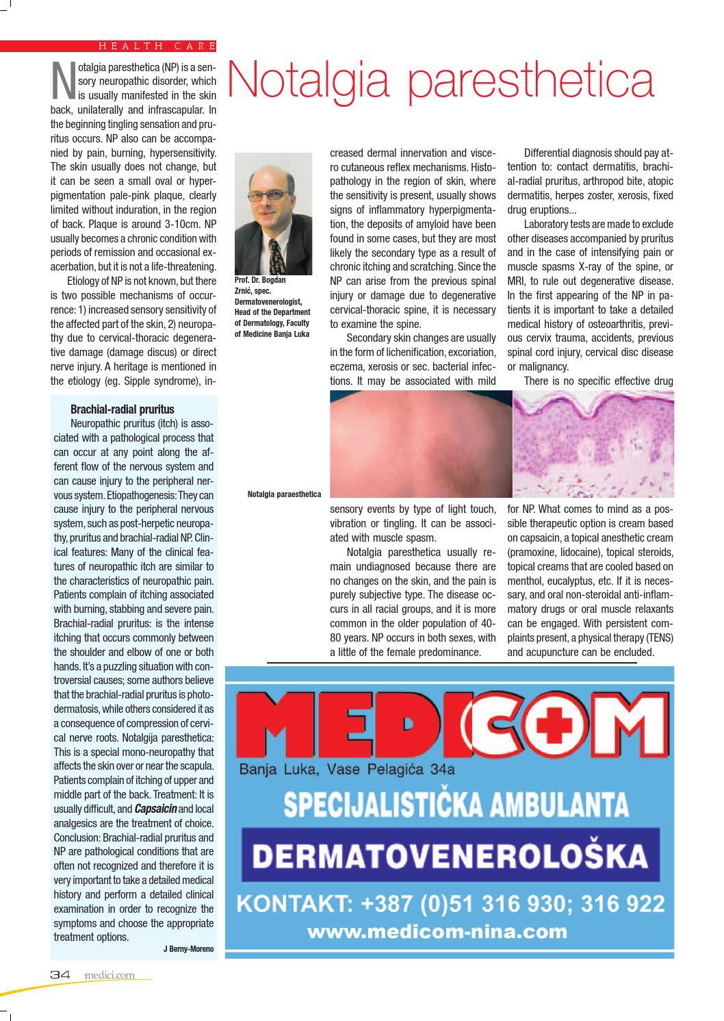 notalgia parestésica cura para la diabetes