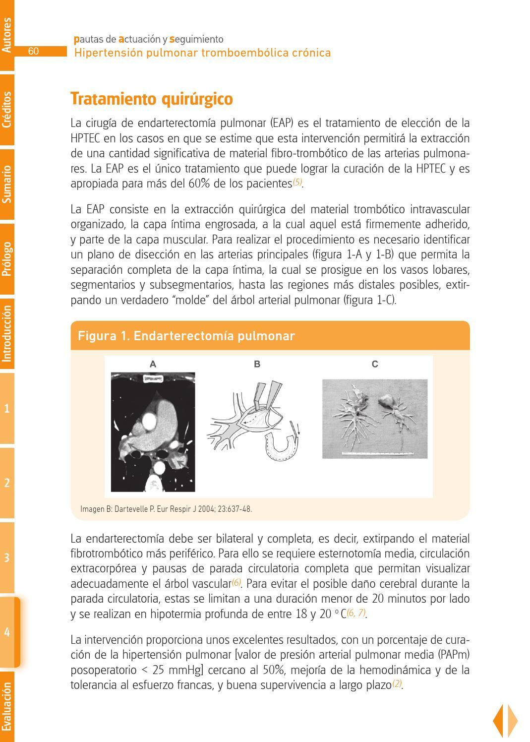 hipertensión intracraneal pdf simptoms