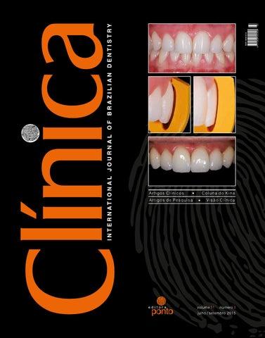 530230dc1 Conquistando maior eficiência nas restaurações em dentes posteriores através  da combinação