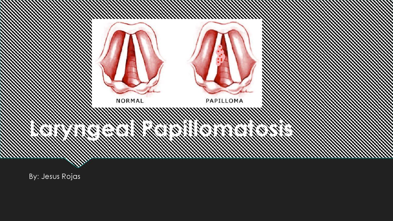 laryngeal papillomatosis bronchitis)