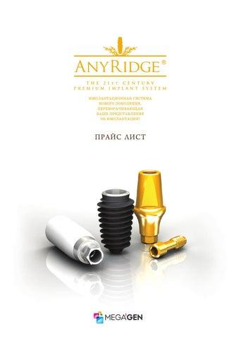 Имплантат anyridge цена