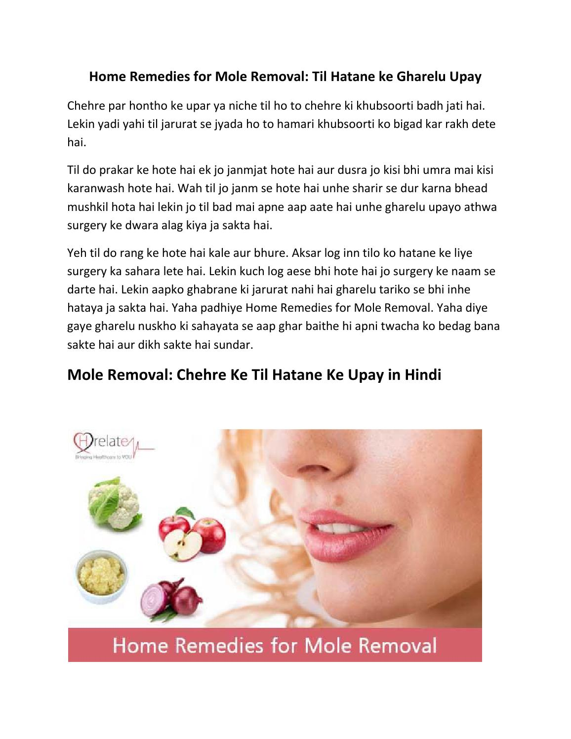 Jane Home Remedies for Mole Removal aur Hataye Chehre Se Til
