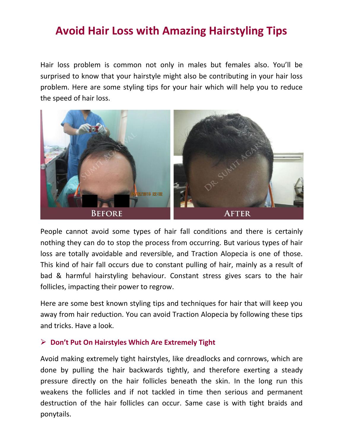 Avoid Hair Loss With Amazing Hairstyling Tips By Harleys