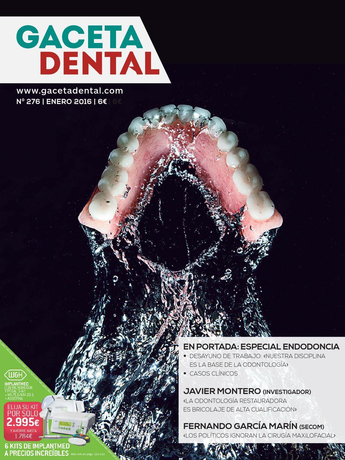 Gaceta Dental - 276 by Peldaño - issuu