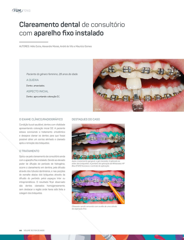 Fgm News 2016 By Fgm Produtos Odontologicos Issuu