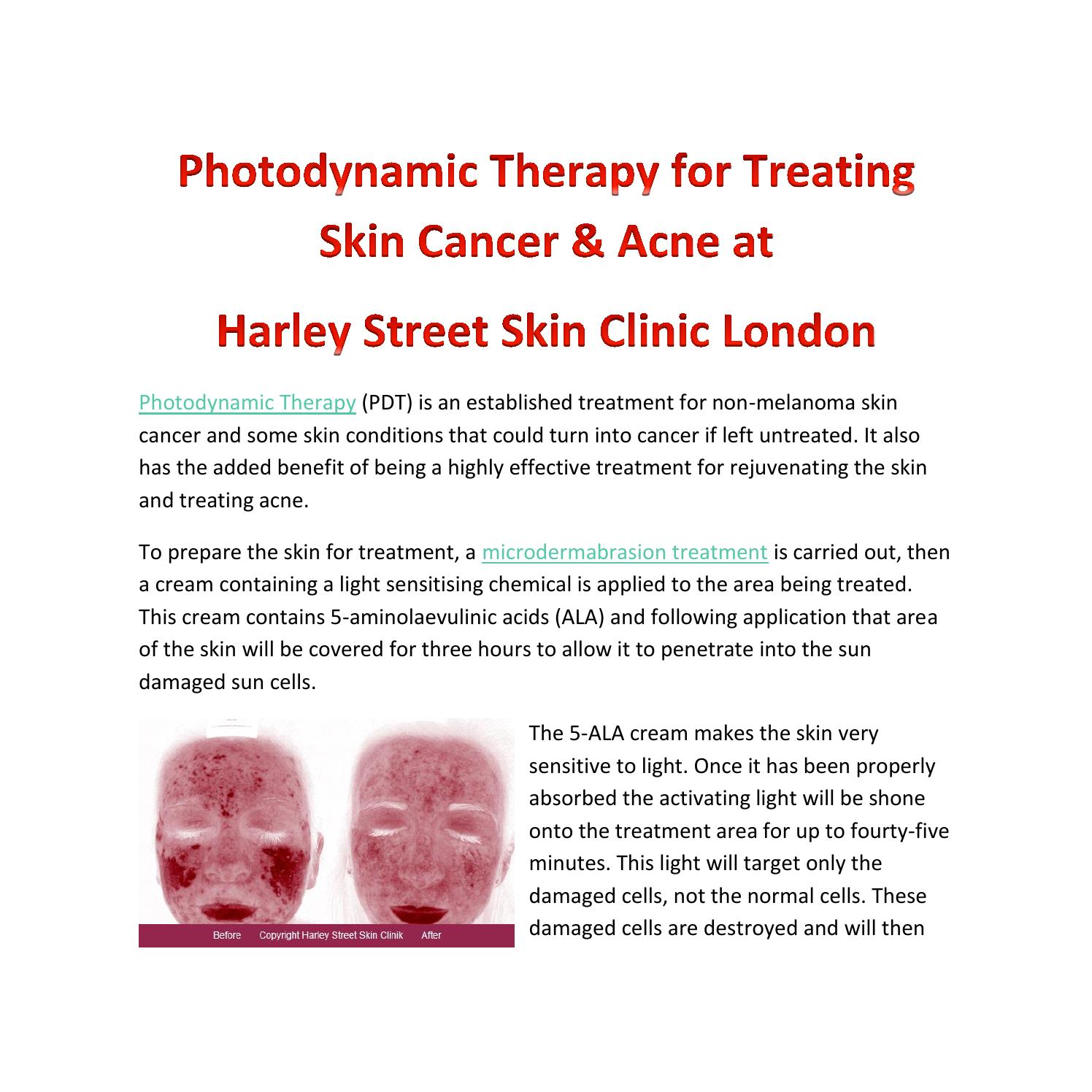 cd124814b4 Photodynamic Therapy for treating Skin Cancer and Acne at Harley Street  Skin Clinic