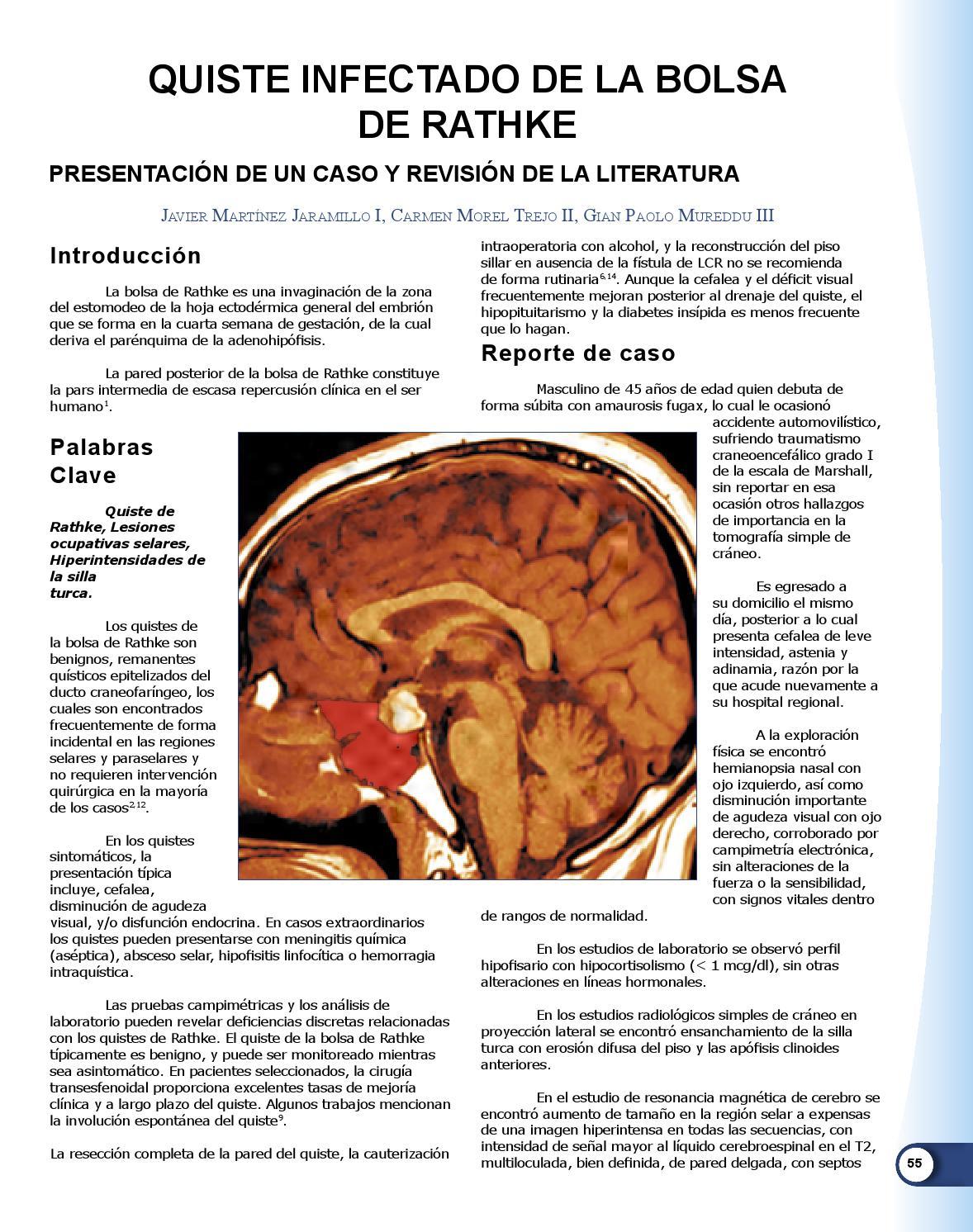 Único Anatomía De La Diabetes Colección de Imágenes - Imágenes de ...