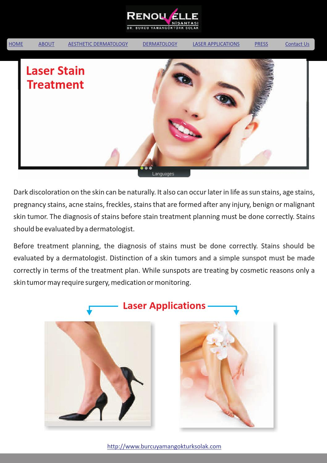 Laser stain treatment by burcuyamango - issuu