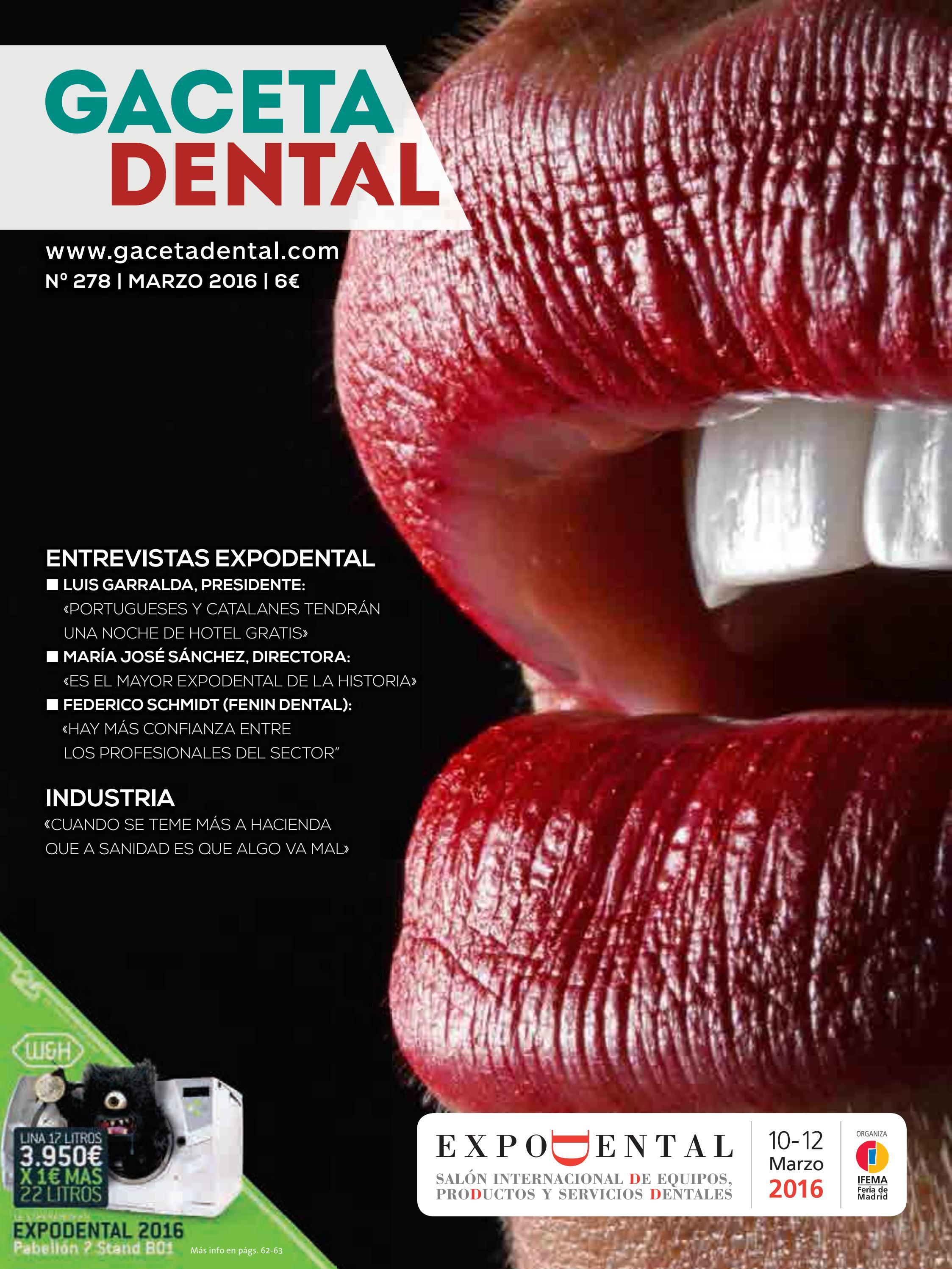 Gaceta Dental - 278 by Peldaño - issuu