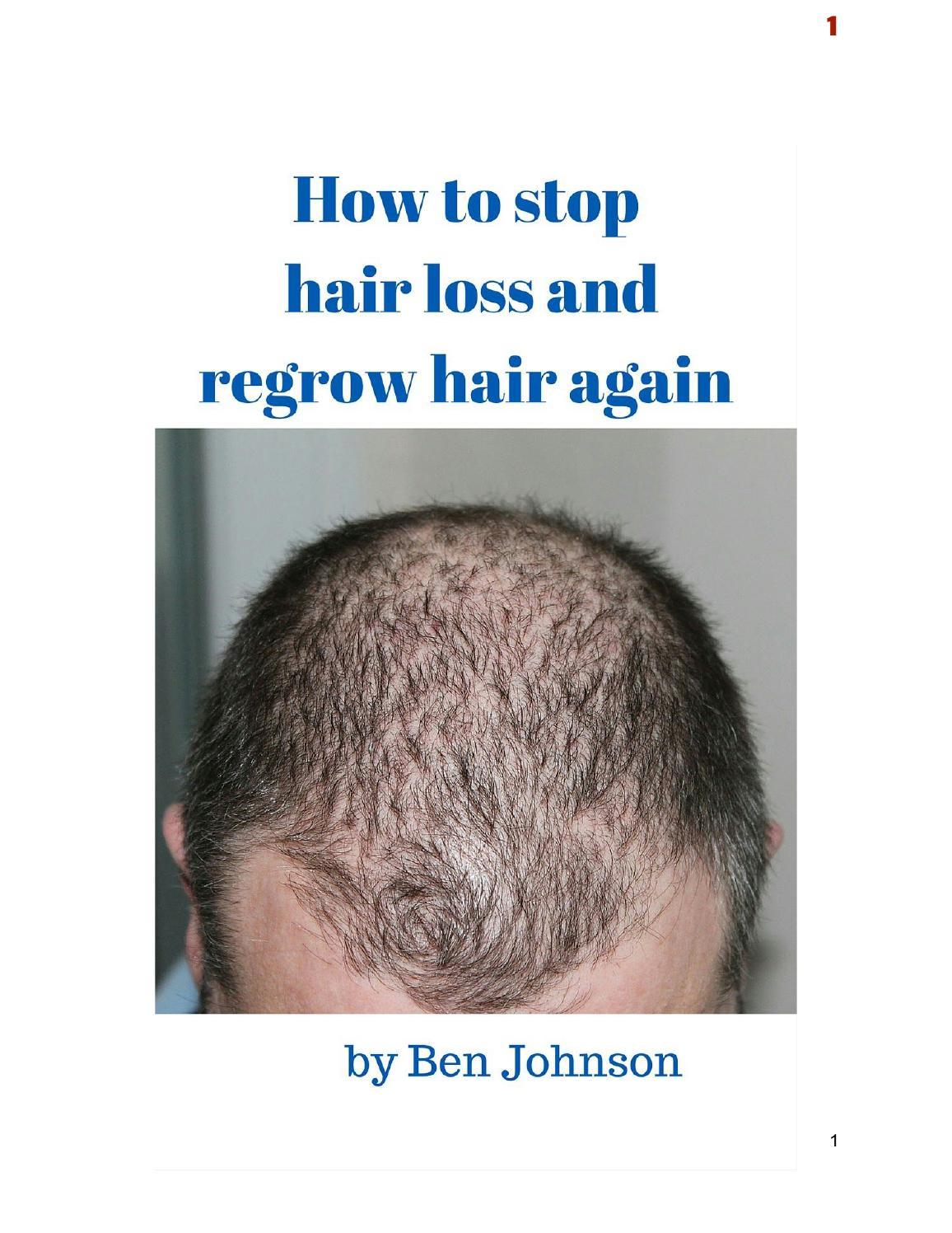 Ways to stop balding