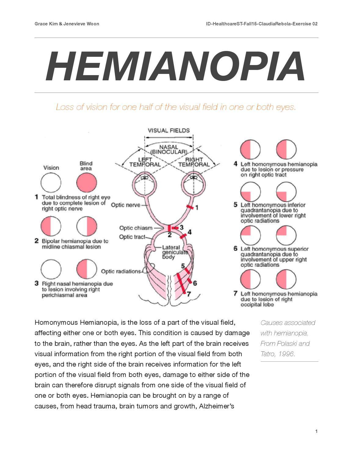 Hemianopia by Jenevieve Woon - Issuu