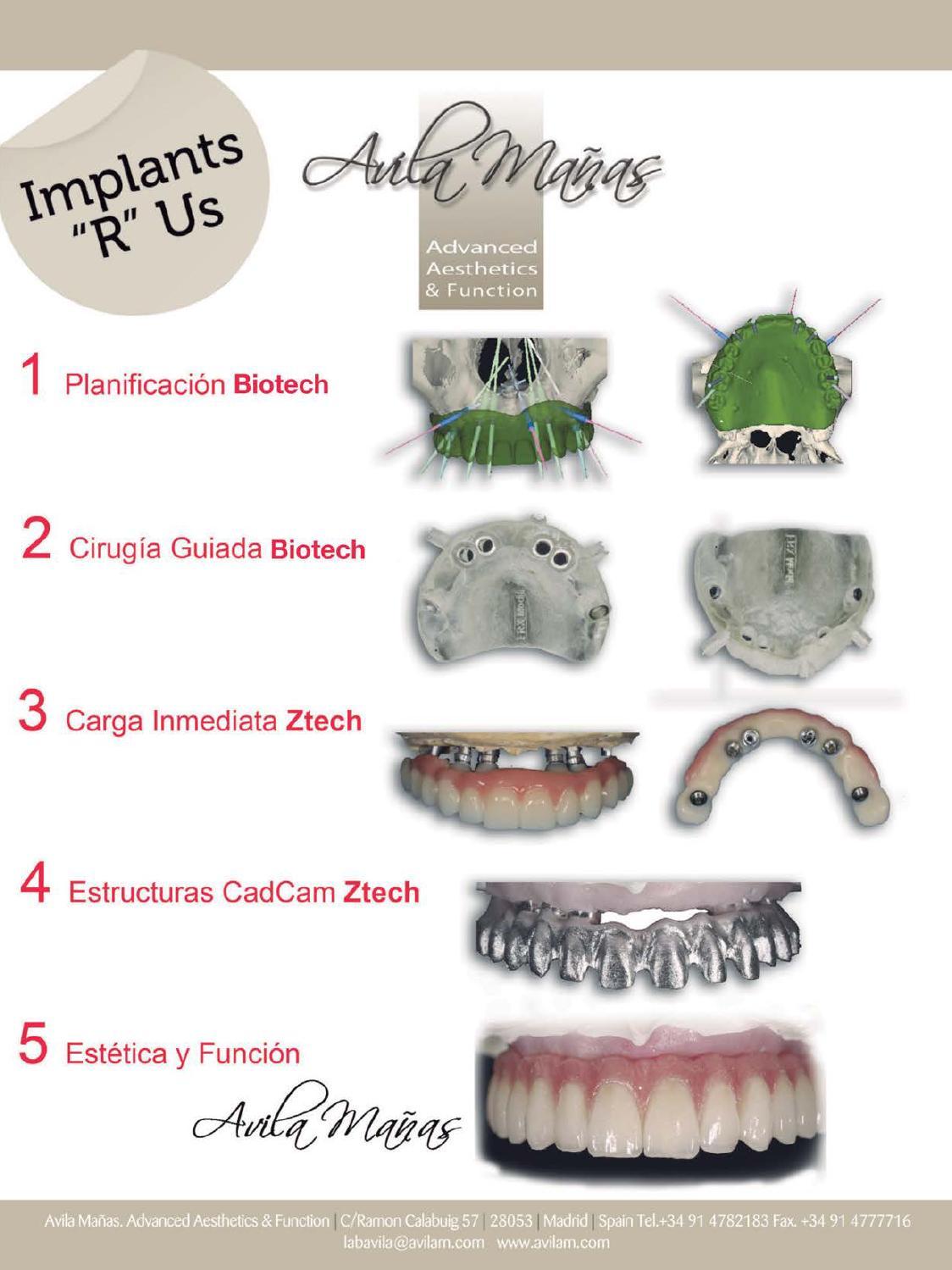 Gaceta Dental - 279 by Peldaño - issuu
