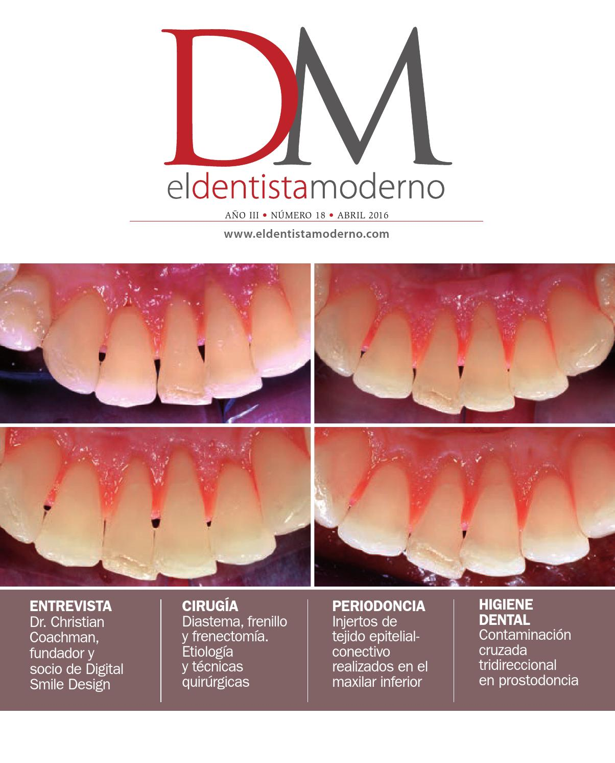 El Dentista Moderno nº 18 by Digital Newspapers S.L. - issuu