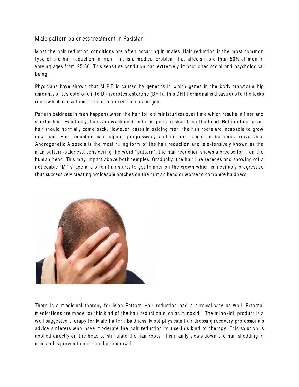 Male pattern baldness treatment in pakistan by maria - issuu