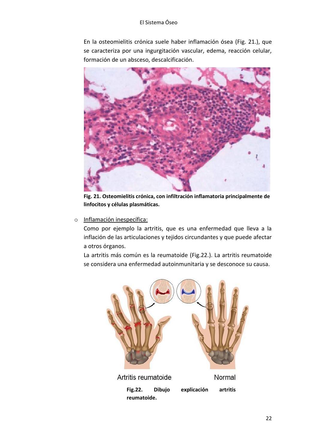 artritis inflamatoria inespecifica