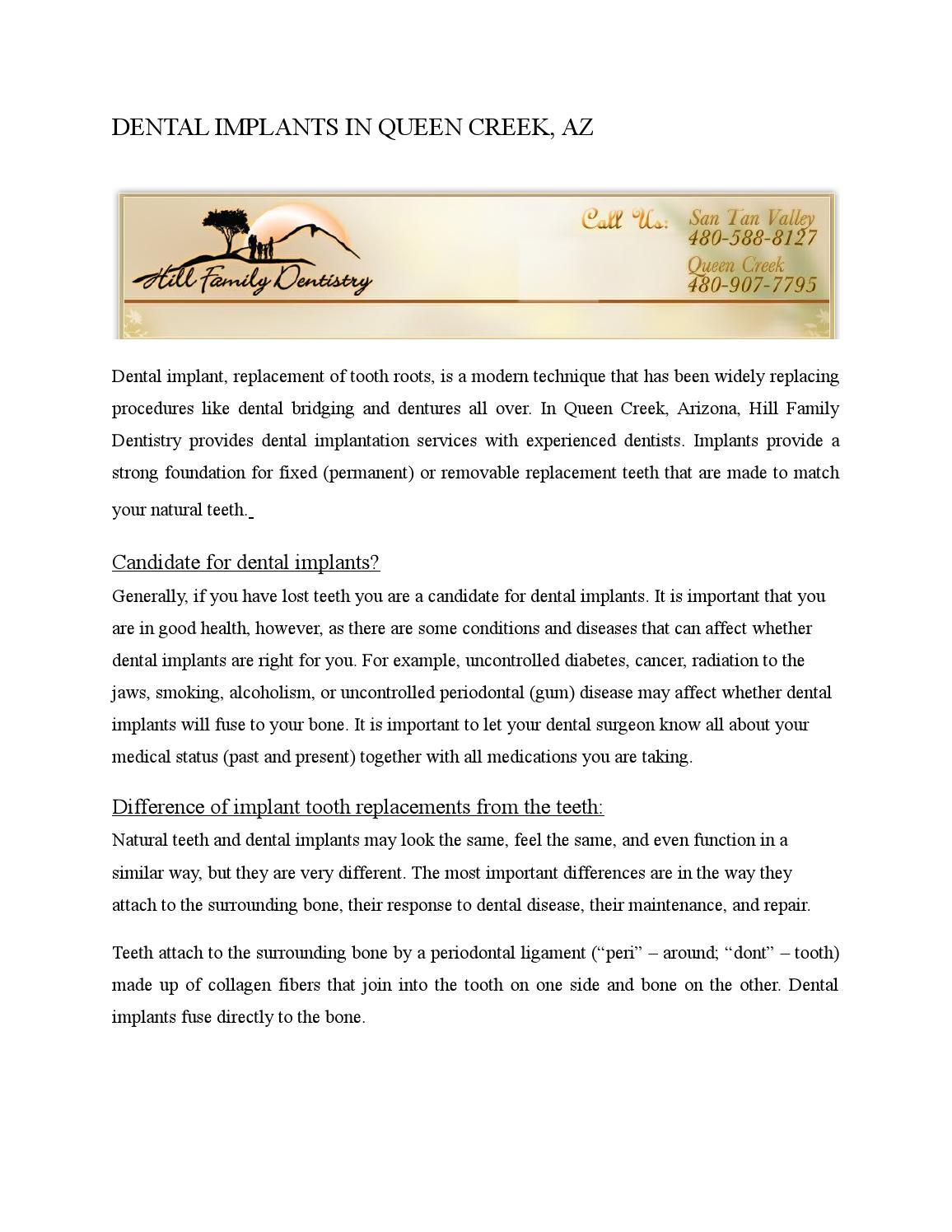 Dental Implants In Queen Creek Az Document Sharing Content 25 05 16