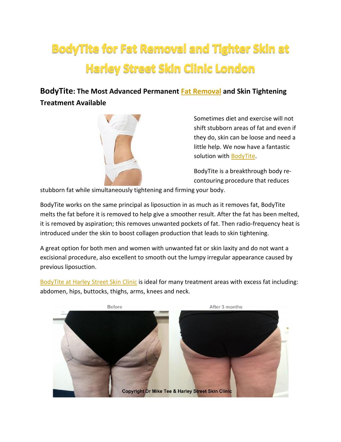 BodyTite for Fat Removal and Tighter Skin at Harley Street