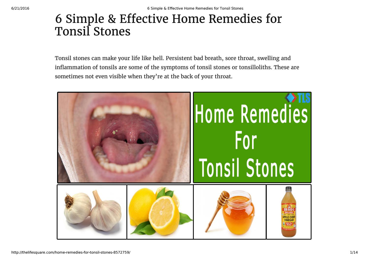 6 Best Home Remedies for Tonsil Stones by The Life Square